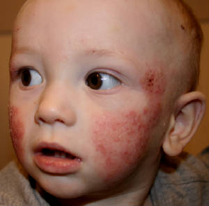 atopic_dermatitis_face_1_051214toddler.jpg