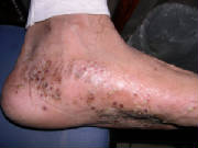 Yes, allergic reaction rashes bottom of foot