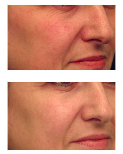 Laser Treatments Nyc Redness Blood Vessels New York Ny
